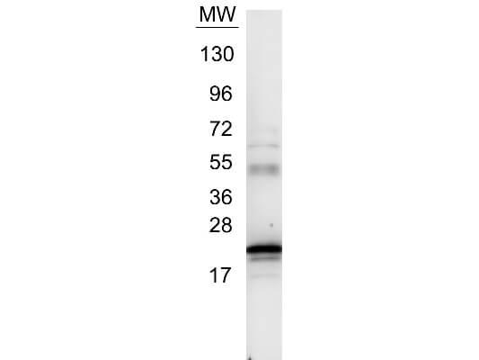 IL-6 Antibody